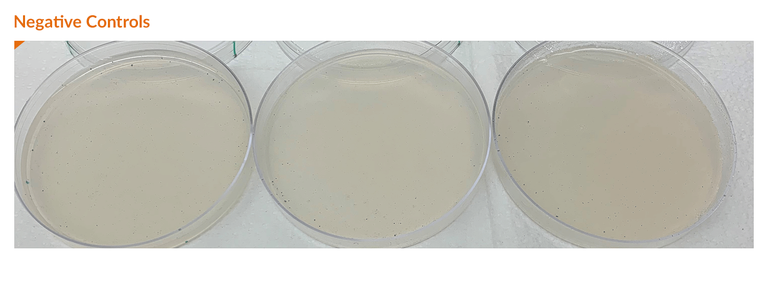 Negative controls of the study show no fungal growth